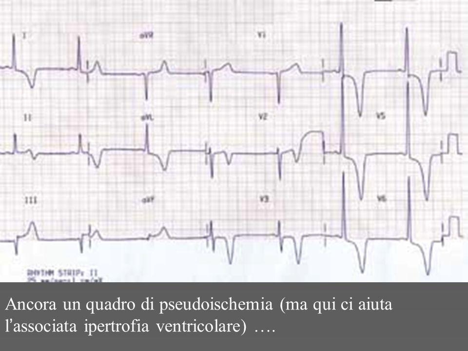 Ancora un quadro di pseudoischemia (ma qui ci aiuta l ' associata ipertrofia ventricolare) ….