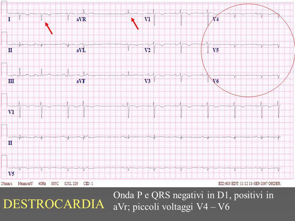 DESTROCARDIA Onda P e QRS negativi in D1, positivi in aVr; piccoli voltaggi V4 – V6