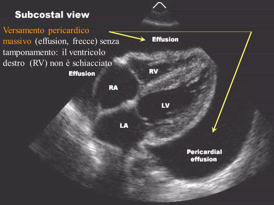 Versamento pericardico massivo (effusion, frecce) senza tamponamento: il ventricolo destro (RV) non è schiacciato