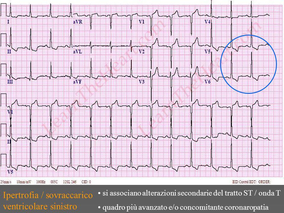 Ipertrofia / sovraccarico ventricolare sinistro si associano alterazioni secondarie del tratto ST / onda T quadro più avanzato e/o concomitante coronaropatia