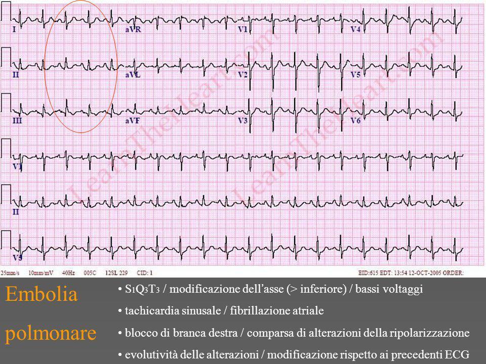 Embolia polmonare S 1 Q 3 T 3 / modificazione dell ' asse (> inferiore) / bassi voltaggi tachicardia sinusale / fibrillazione atriale blocco di branca destra / comparsa di alterazioni della ripolarizzazione evolutività delle alterazioni / modificazione rispetto ai precedenti ECG