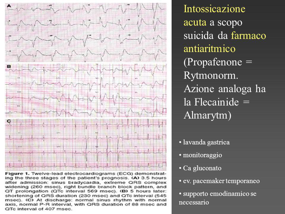 Intossicazione acuta a scopo suicida da farmaco antiaritmico (Propafenone = Rytmonorm.
