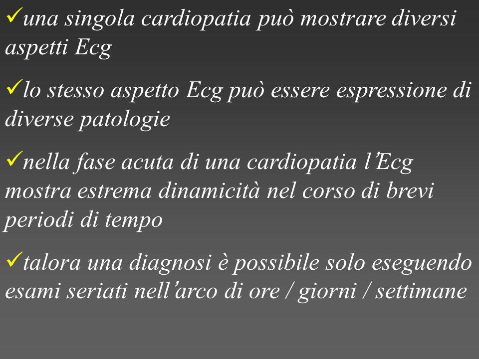 una singola cardiopatia può mostrare diversi aspetti Ecg lo stesso aspetto Ecg può essere espressione di diverse patologie nella fase acuta di una cardiopatia l ' Ecg mostra estrema dinamicità nel corso di brevi periodi di tempo talora una diagnosi è possibile solo eseguendo esami seriati nell ' arco di ore / giorni / settimane