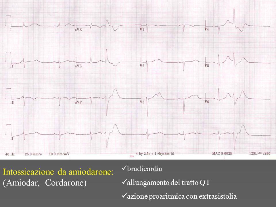 bradicardia allungamento del tratto QT azione proaritmica con extrasistolia Intossicazione da amiodarone: (Amiodar, Cordarone)
