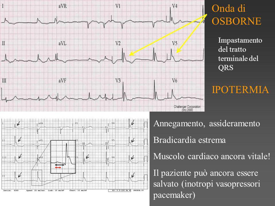 Onda di OSBORNE Impastamento del tratto terminale del QRS IPOTERMIA Annegamento, assideramento Bradicardia estrema Muscolo cardiaco ancora vitale.