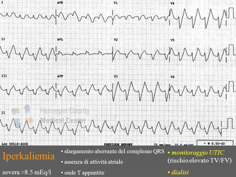Iperkaliemia slargamento aberrante del complesso QRS assenza di attività atriale onde T appuntite severa >8.5 mEq/l monitoraggio UTIC (rischio elevato TV/FV) dialisi
