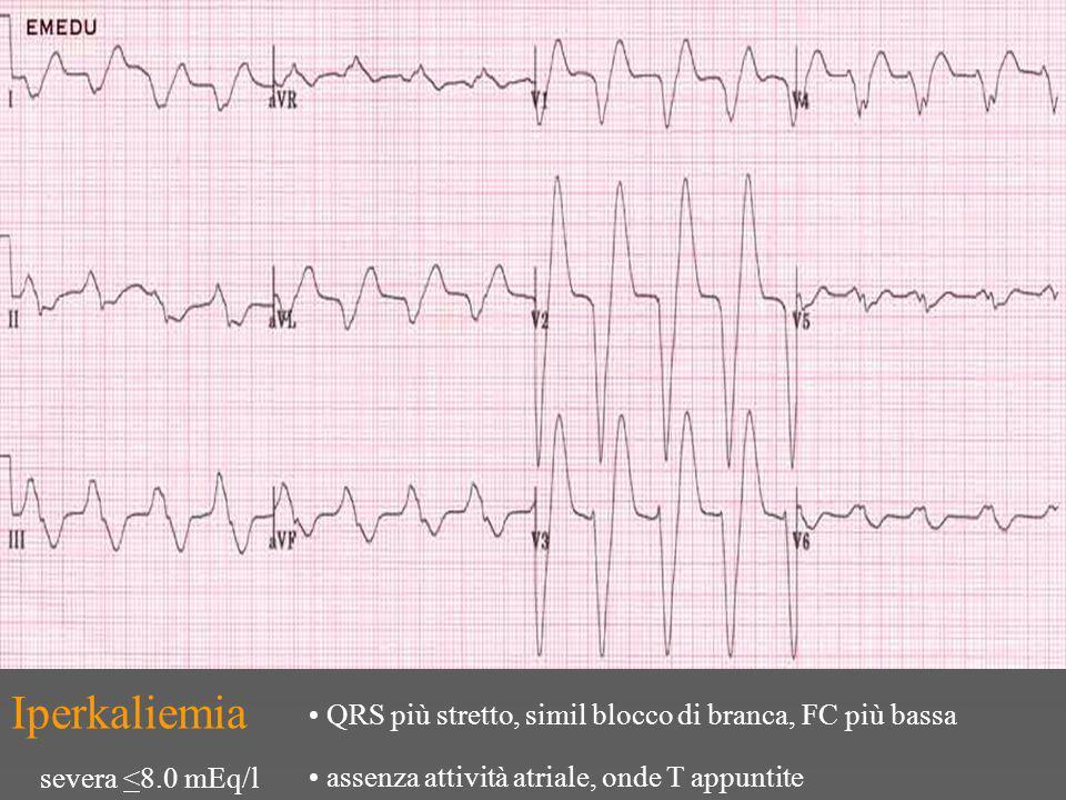 Iperkaliemia severa <8.0 mEq/l QRS più stretto, simil blocco di branca, FC più bassa assenza attività atriale, onde T appuntite
