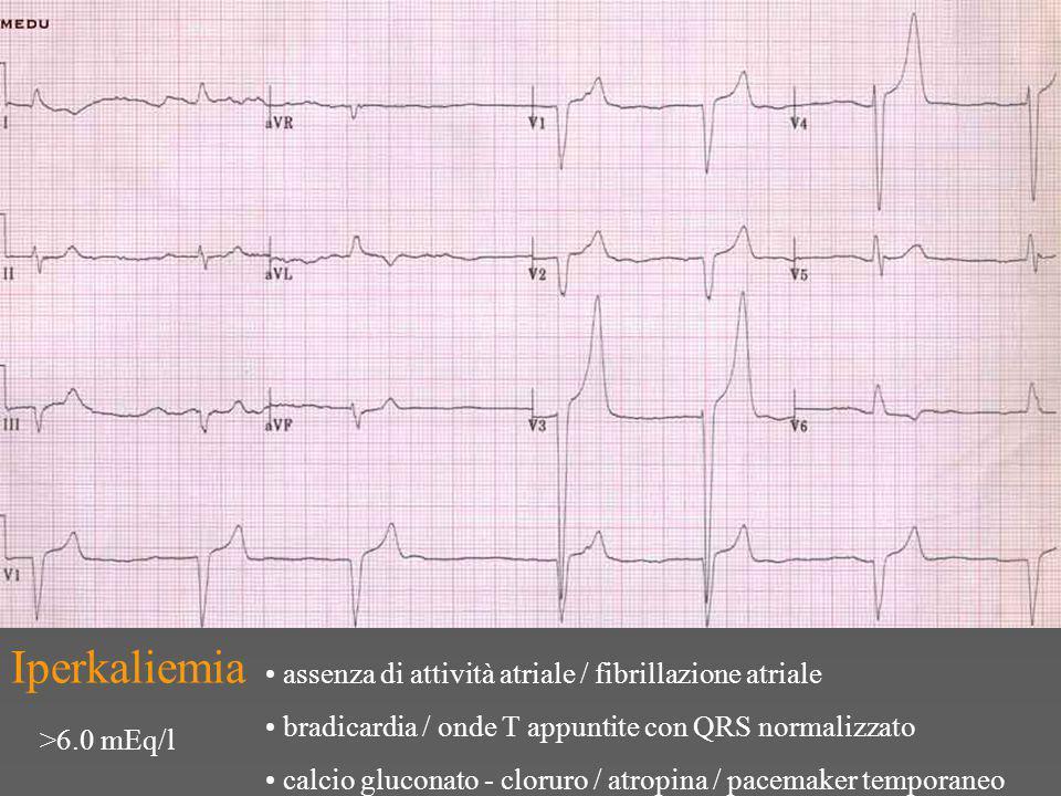 Iperkaliemia assenza di attività atriale / fibrillazione atriale bradicardia / onde T appuntite con QRS normalizzato calcio gluconato - cloruro / atropina / pacemaker temporaneo >6.0 mEq/l
