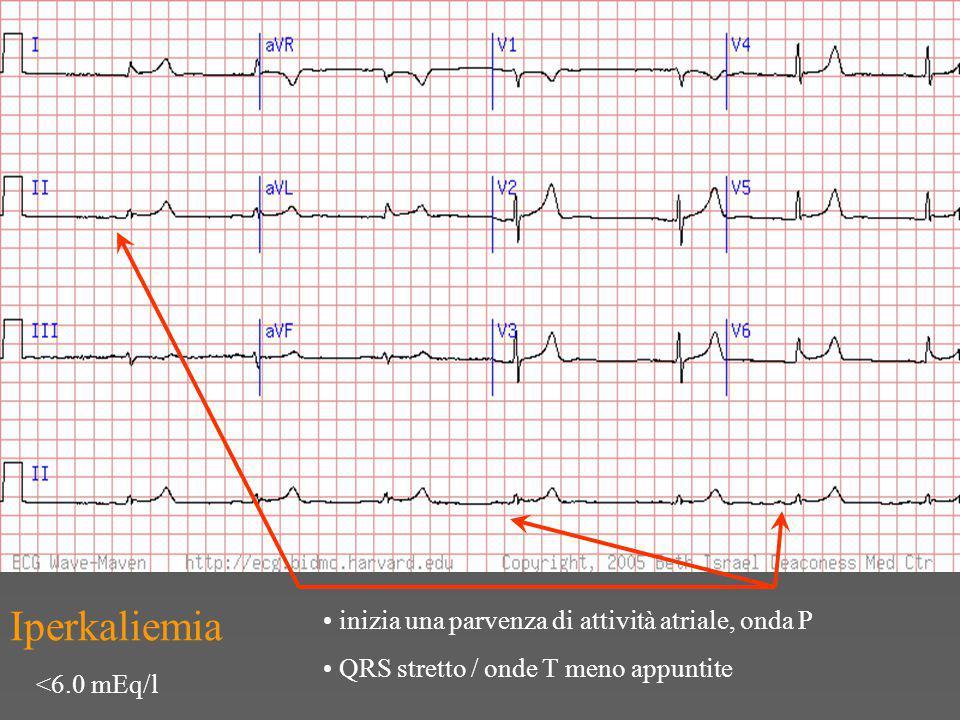Iperkaliemia inizia una parvenza di attività atriale, onda P QRS stretto / onde T meno appuntite <6.0 mEq/l
