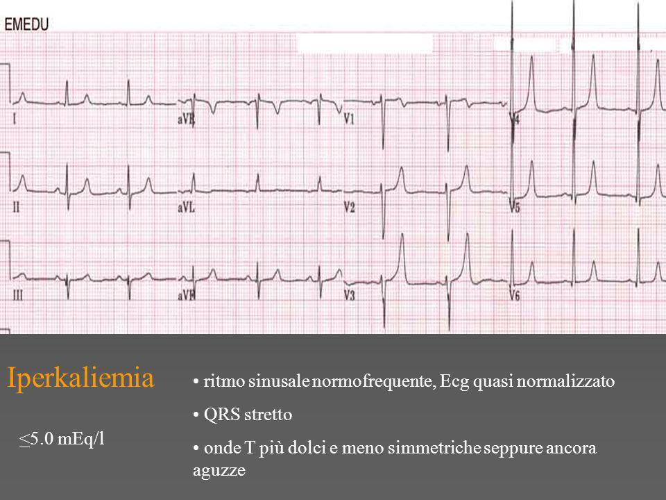 Iperkaliemia ritmo sinusale normofrequente, Ecg quasi normalizzato QRS stretto onde T più dolci e meno simmetriche seppure ancora aguzze <5.0 mEq/l