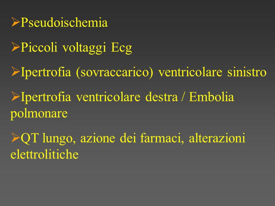  Pseudoischemia  Piccoli voltaggi Ecg  Ipertrofia (sovraccarico) ventricolare sinistro  Ipertrofia ventricolare destra / Embolia polmonare  QT lungo, azione dei farmaci, alterazioni elettrolitiche