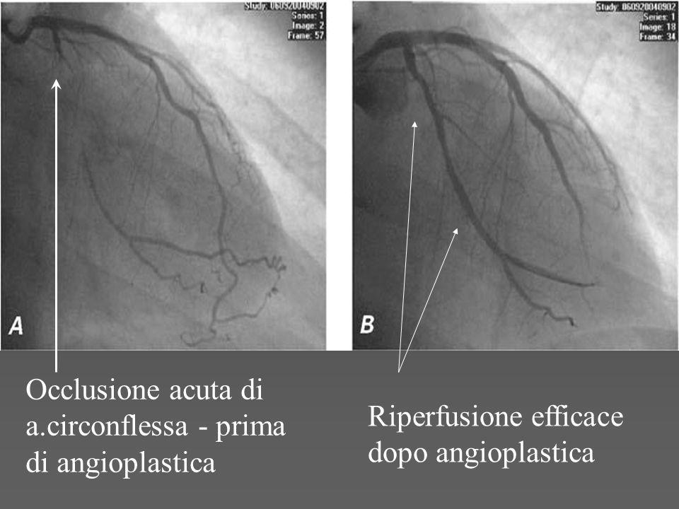Occlusione acuta di a.circonflessa - prima di angioplastica Riperfusione efficace dopo angioplastica