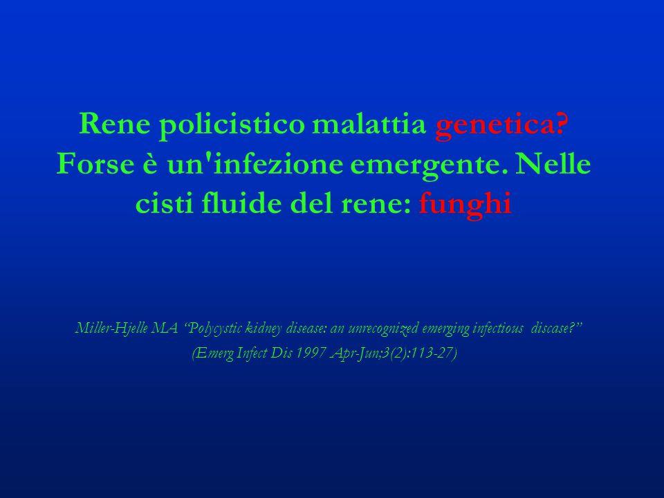 """Rene policistico malattia genetica? Forse è un'infezione emergente. Nelle cisti fluide del rene: funghi Miller-Hjelle MA """"Polycystic kidney disease: a"""