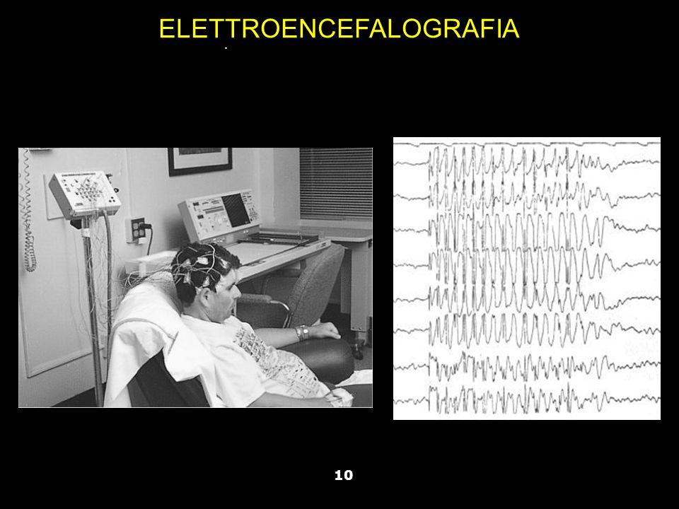 Vallar, Papagno (a cura di), Manuale di neuropsicologia, Il Mulino, 2011 Capitolo IV. ELEMENTI DI NEUROLOGIA 10 ELETTROENCEFALOGRAFIA