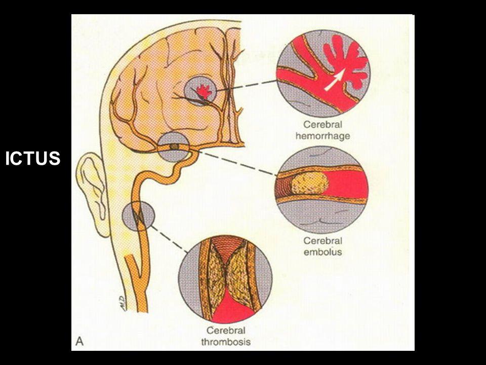 Vallar, Papagno (a cura di), Manuale di neuropsicologia, Il Mulino, 2011 Capitolo IV. ELEMENTI DI NEUROLOGIA ICTUS