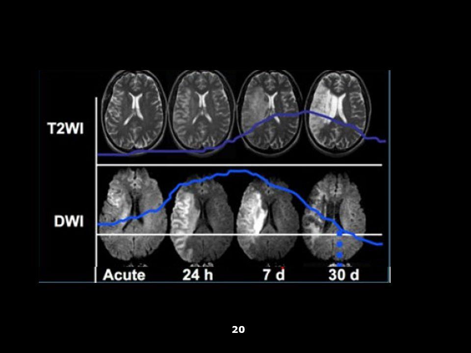 Vallar, Papagno (a cura di), Manuale di neuropsicologia, Il Mulino, 2011 Capitolo IV. ELEMENTI DI NEUROLOGIA 20