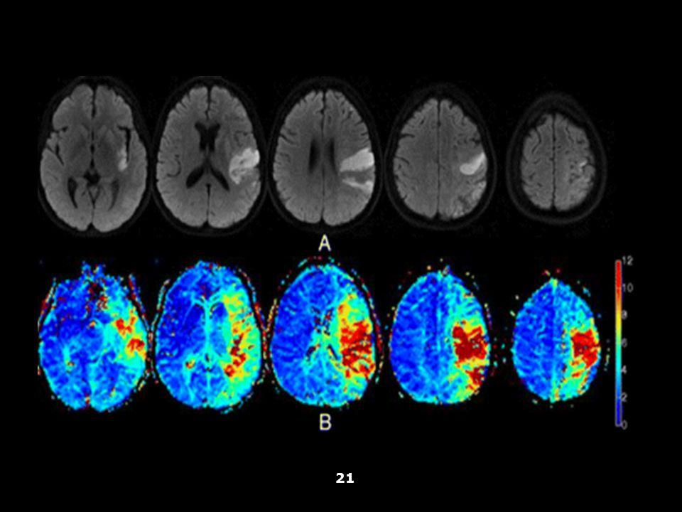 Vallar, Papagno (a cura di), Manuale di neuropsicologia, Il Mulino, 2011 Capitolo IV. ELEMENTI DI NEUROLOGIA 21