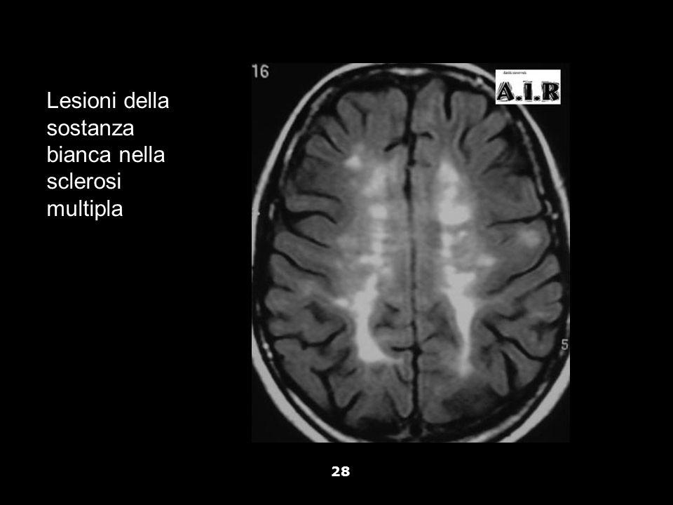 Vallar, Papagno (a cura di), Manuale di neuropsicologia, Il Mulino, 2011 Capitolo IV. ELEMENTI DI NEUROLOGIA 28 Lesioni della sostanza bianca nella sc