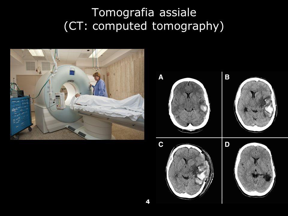 Vallar, Papagno (a cura di), Manuale di neuropsicologia, Il Mulino, 2011 Capitolo IV. ELEMENTI DI NEUROLOGIA Tomografia assiale (CT: computed tomograp