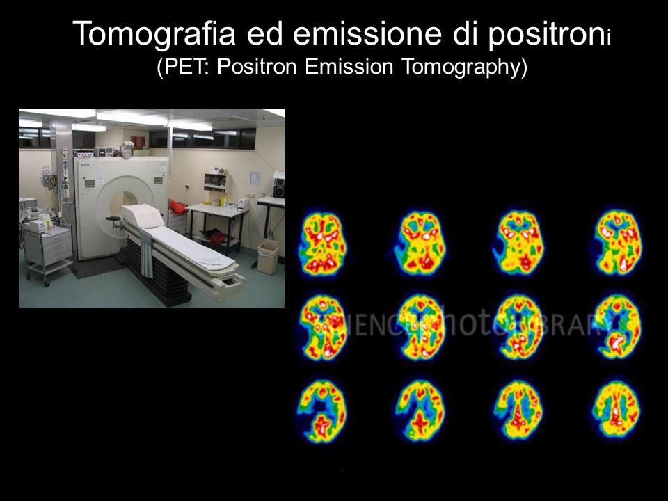 Vallar, Papagno (a cura di), Manuale di neuropsicologia, Il Mulino, 2011 Capitolo IV. ELEMENTI DI NEUROLOGIA 9 Tomografia ed emissione di positron i (