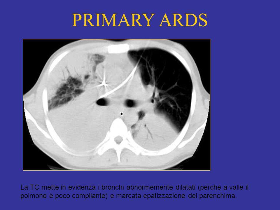 PRIMARY ARDS La TC mette in evidenza i bronchi abnormemente dilatati (perché a valle il polmone è poco compliante) e marcata epatizzazione del parenchima.