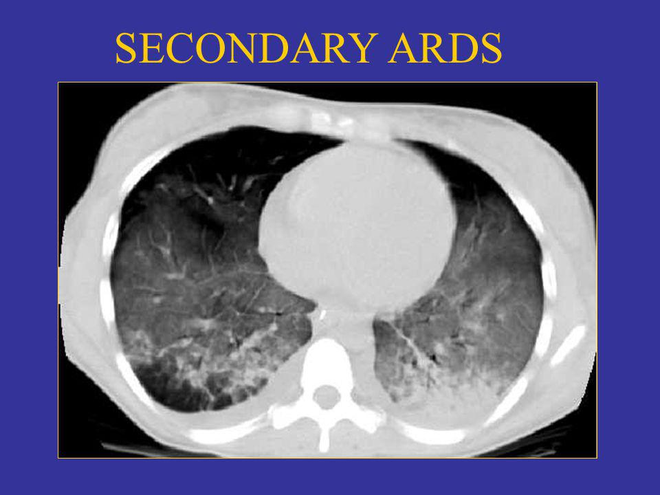 SECONDARY ARDS