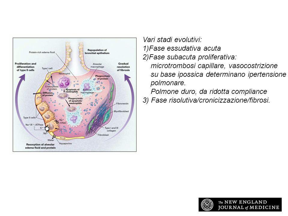 A L I A R D S ISTOLOGIA (fase acuta) : –Aggregazione ed attivazione dei neutrofili e delle piastrine –Distruzione endoteliale ed alveolare a chiazze –Edema interstiziale poi –Fibrosi (fase fibroproliferativa)