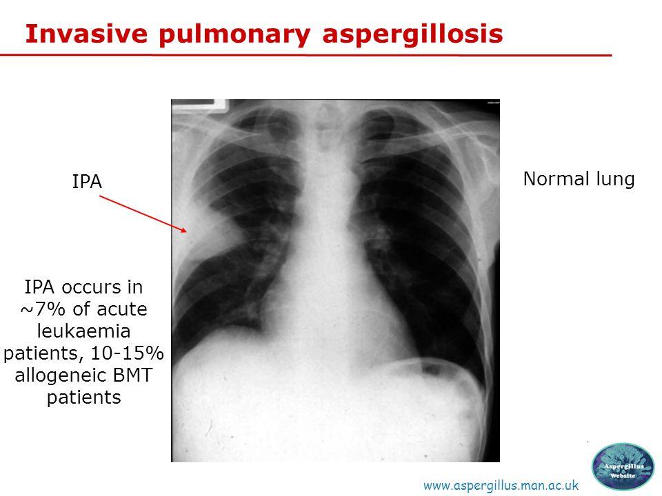 Invasive pulmonary aspergillosis www.aspergillus.man.ac.uk Normal lung IPA IPA occurs in ~7% of acute leukaemia patients, 10-15% allogeneic BMT patients