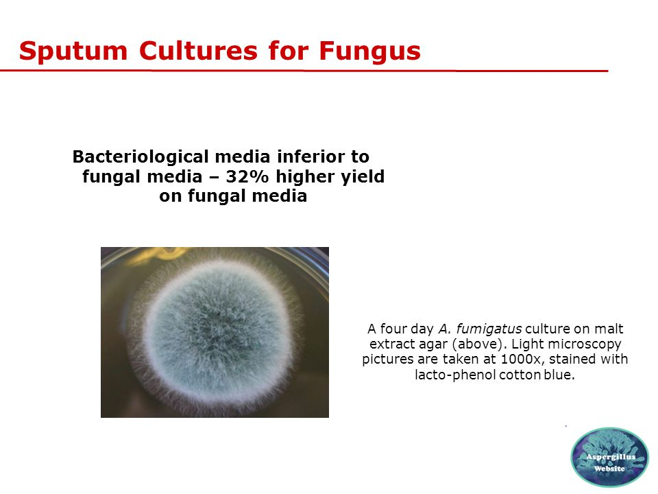 Sputum Cultures for Fungus Bacteriological media inferior to fungal media – 32% higher yield on fungal media A four day A. fumigatus culture on malt e