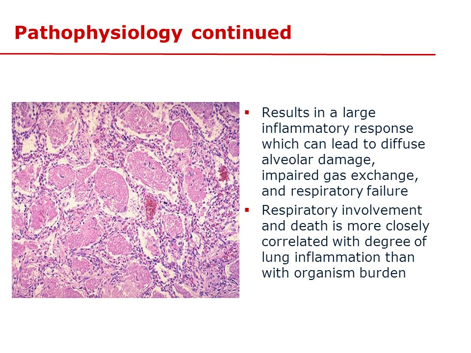 Pathophysiology continued  Results in a large inflammatory response which can lead to diffuse alveolar damage, impaired gas exchange, and respiratory