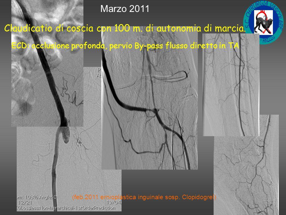 Marzo 2011 Claudicatio di coscia con 100 m.di autonomia di marcia.