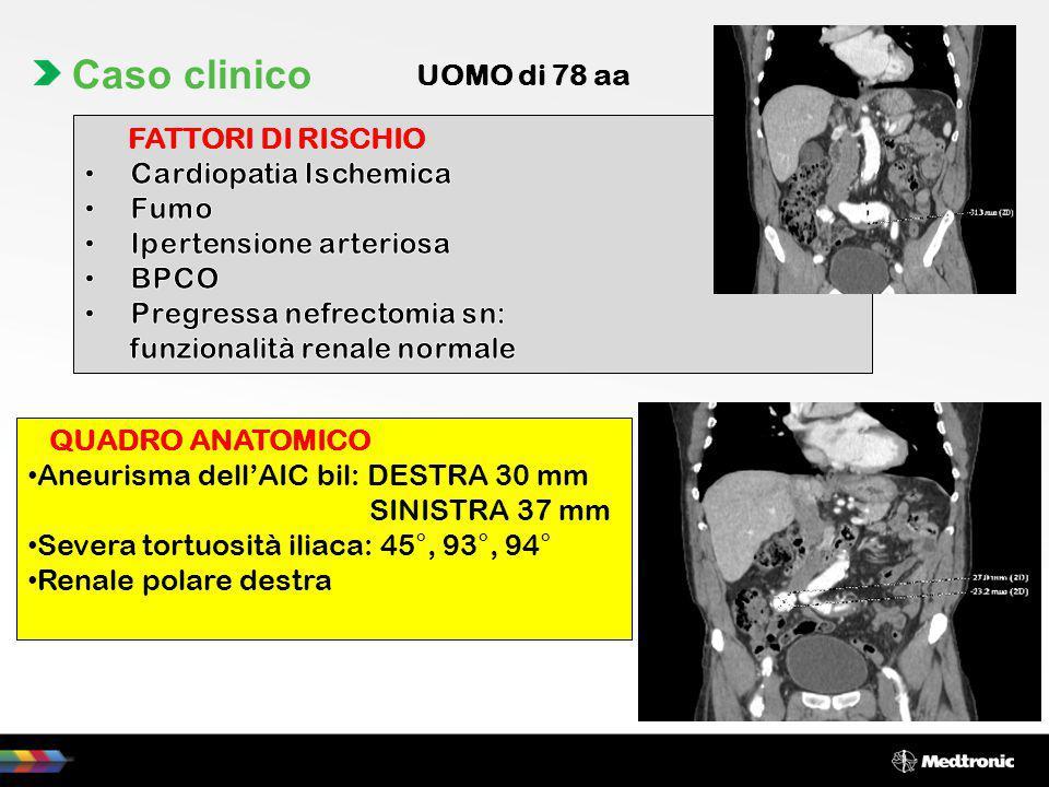 QUADRO ANATOMICO Aneurisma dell'AIC bil: DESTRA 30 mm SINISTRA 37 mm Severa tortuosità iliaca: 45°, 93°, 94° Renale polare destra Caso clinico UOMO di
