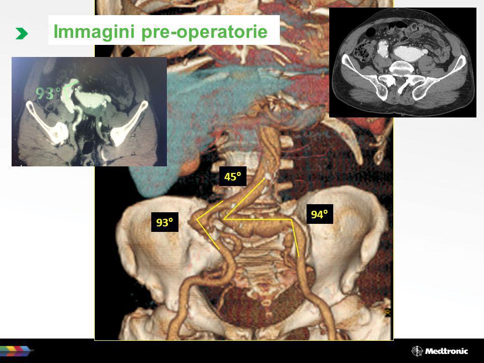 Opzioni di trattamento Opzione chirurgica: 1) Resezione e sostituzione con protesi aorto-bisiliaca.