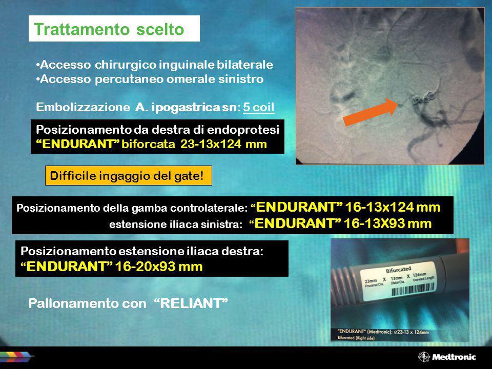 Trattamento scelto Accesso chirurgico inguinale bilaterale Accesso percutaneo omerale sinistro Embolizzazione A. ipogastrica sn: 5 coil Posizionamento