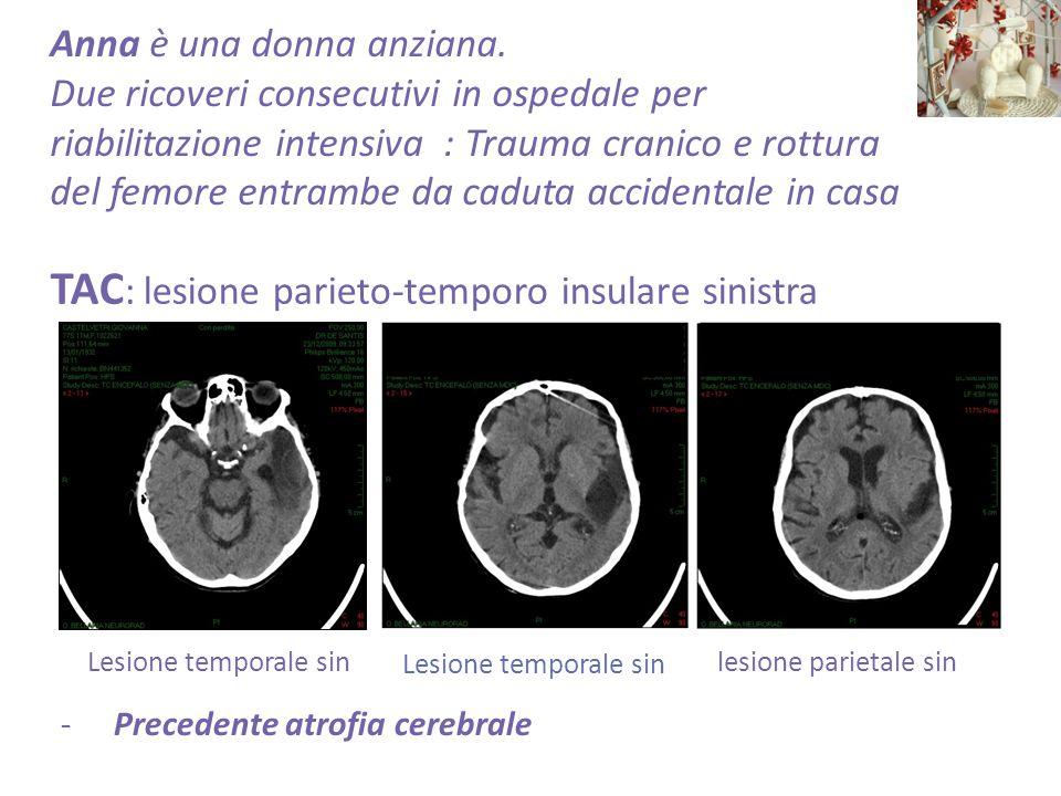 -Precedente atrofia cerebrale TAC : lesione parieto-temporo insulare sinistra Anna è una donna anziana.