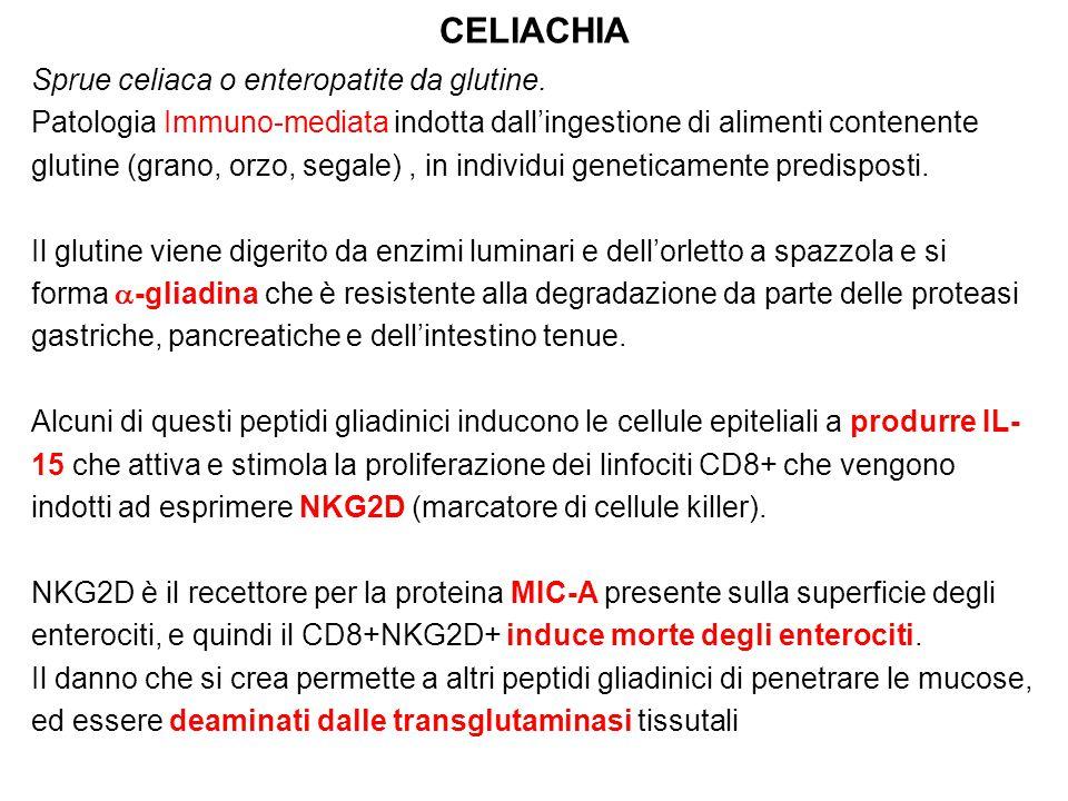 CELIACHIA Sprue celiaca o enteropatite da glutine. Patologia Immuno-mediata indotta dall'ingestione di alimenti contenente glutine (grano, orzo, segal