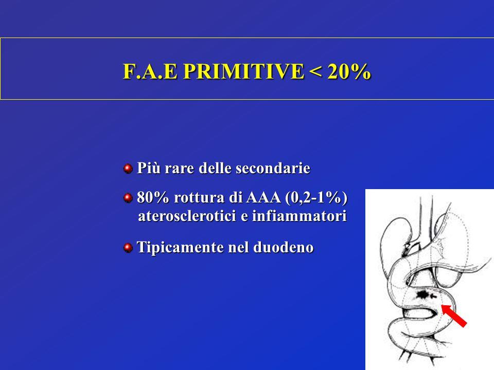 Più rare delle secondarie Più rare delle secondarie 80% rottura di AAA (0,2-1%) 80% rottura di AAA (0,2-1%) aterosclerotici e infiammatori aterosclero