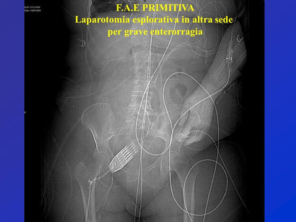 F.A.E PRIMITIVA Laparotomia esplorativa in altra sede per grave enterorragia