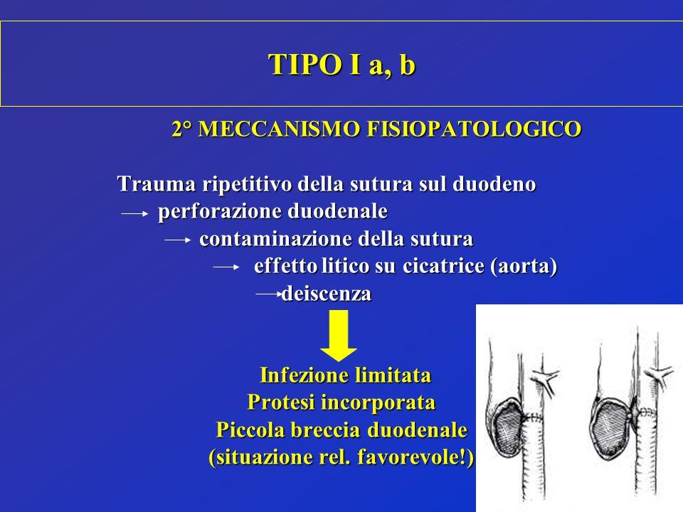 TIPO I a, b 2° MECCANISMO FISIOPATOLOGICO Trauma ripetitivo della sutura sul duodeno perforazione duodenale contaminazione della sutura contaminazione