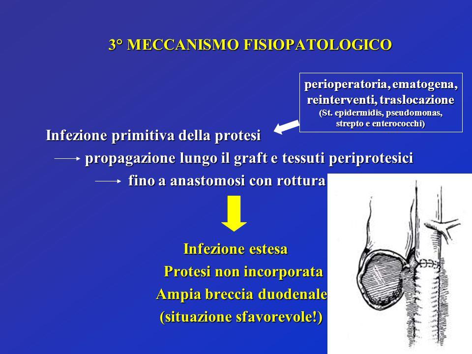 3° MECCANISMO FISIOPATOLOGICO Infezione primitiva della protesi propagazione lungo il graft e tessuti periprotesici propagazione lungo il graft e tess