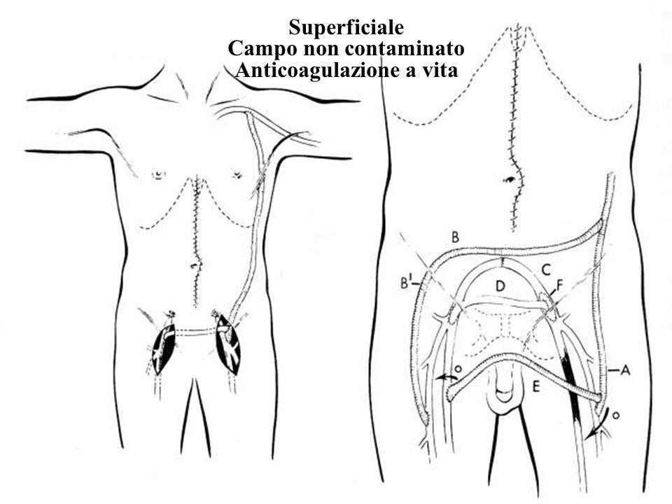 Superficiale Campo non contaminato Anticoagulazione a vita