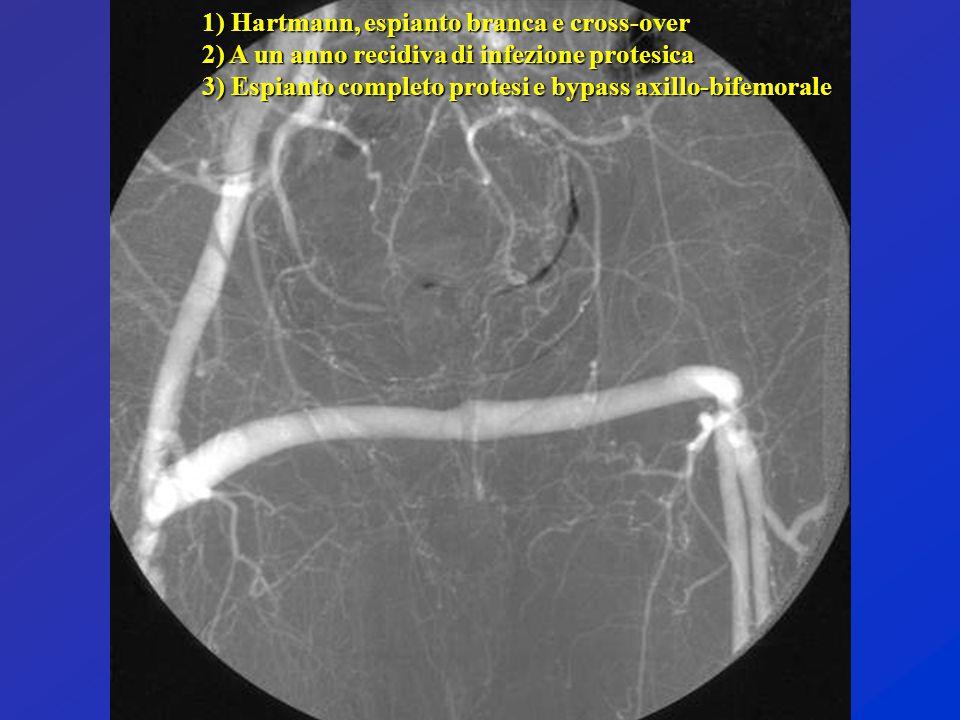 1) Hartmann, espianto branca e cross-over 2) A un anno recidiva di infezione protesica 3) Espianto completo protesi e bypass axillo-bifemorale