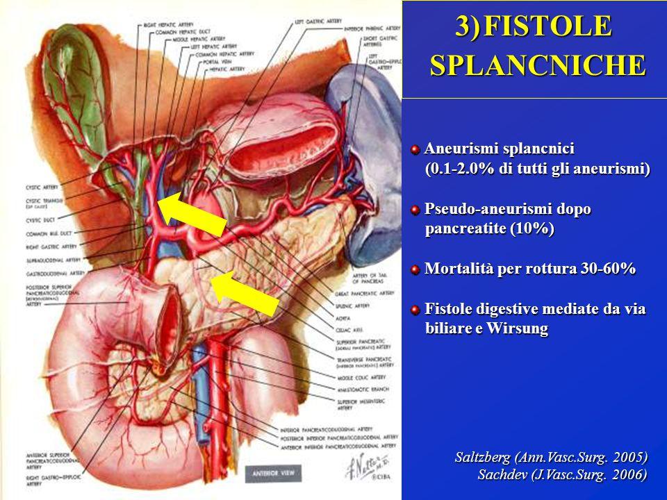 3)FISTOLE SPLANCNICHE SPLANCNICHE Aneurismi splancnici Aneurismi splancnici (0.1-2.0% di tutti gli aneurismi) (0.1-2.0% di tutti gli aneurismi) Pseudo