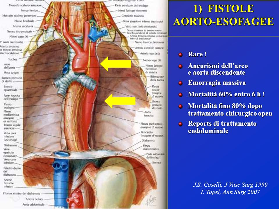 1) FISTOLE AORTO-ESOFAGEE Rare ! Aneurismi dell'arco e aorta discendente e aorta discendente Emorragia massiva Mortalità 60% entro 6 h ! Mortalità fin