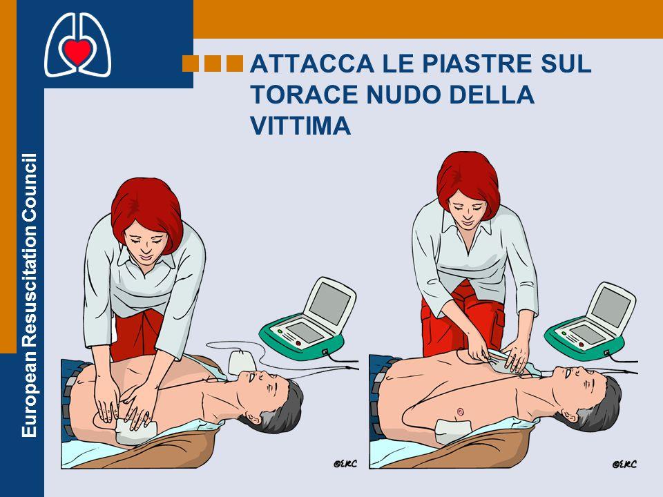 European Resuscitation Council ATTACCA LE PIASTRE SUL TORACE NUDO DELLA VITTIMA
