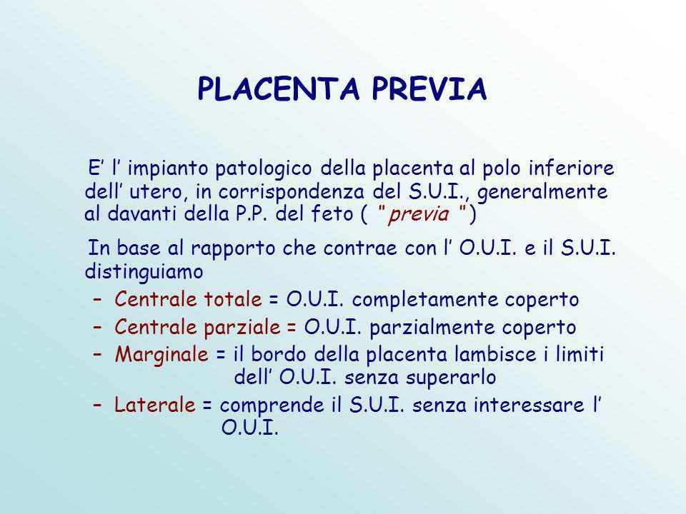 PLACENTA PREVIA E' l' impianto patologico della placenta al polo inferiore dell' utero, in corrispondenza del S.U.I., generalmente al davanti della P.P.