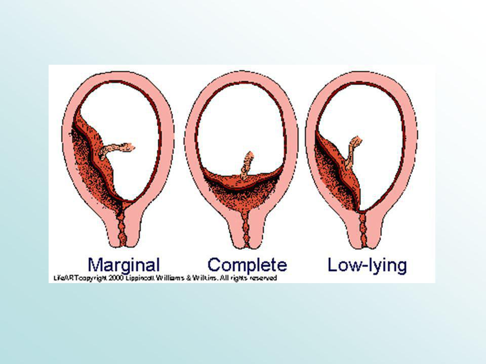 ETIOLOGIA L' incidenza è di 1 su 200 nascite - il 90 % si ha nelle pluripare le cause non sono completamente conosciute –multiparità –precedenti chirurgie sull' utero