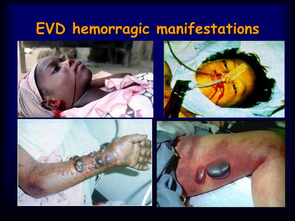 EVD hemorragic manifestations