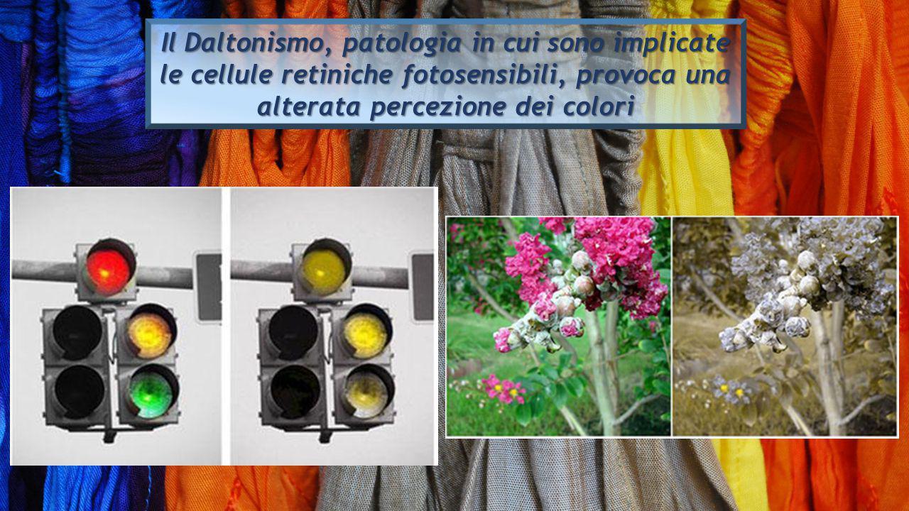 Il Daltonismo, patologia in cui sono implicate le cellule retiniche fotosensibili, provoca una alterata percezione dei colori