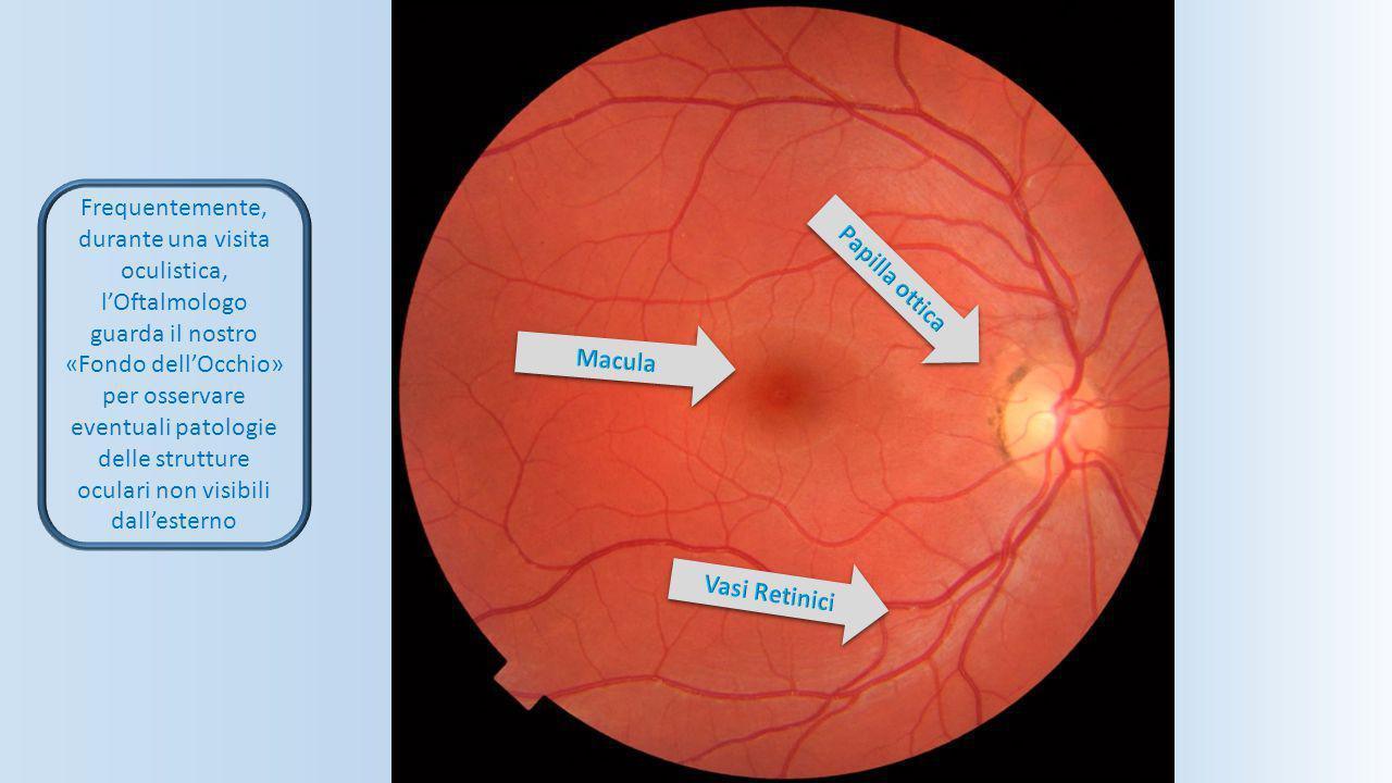 Frequentemente, durante una visita oculistica, l'Oftalmologo guarda il nostro «Fondo dell'Occhio» per osservare eventuali patologie delle strutture oc